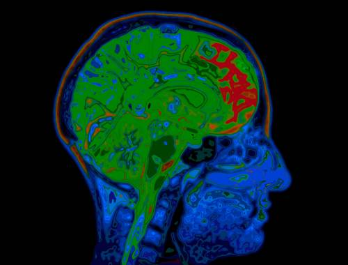 brain-activity-mapping-image-of-default-network-mode